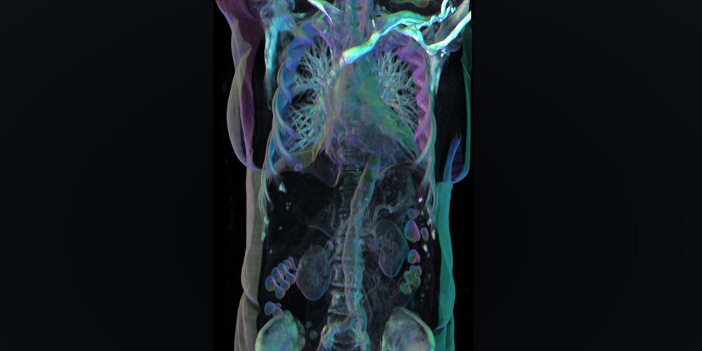 3D-Patientendaten direkt aus der Klinik - Ars Electronica Blog